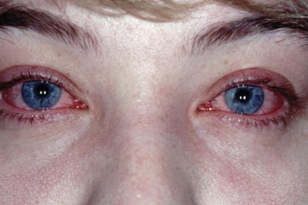 сезонная аллергия симптомы лечение