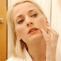 Стероидный дерматит: симптомы и лечение