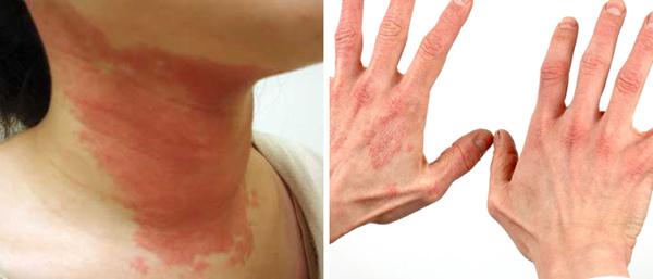симптомы токсико-аллергического дерматита