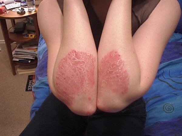 уколы от псориаза