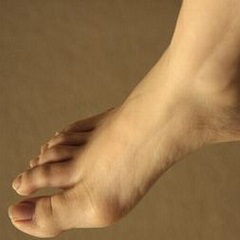 Варикозная экзема нижних конечностей: симптомы, лечение