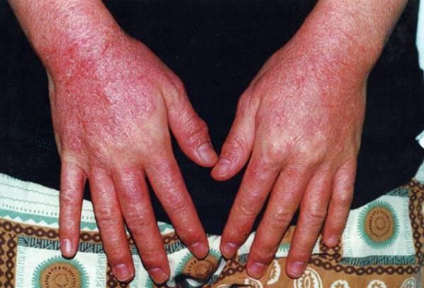 виды дерматитов у взрослых