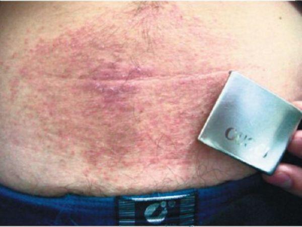 аллергия на металл симптомы лечение