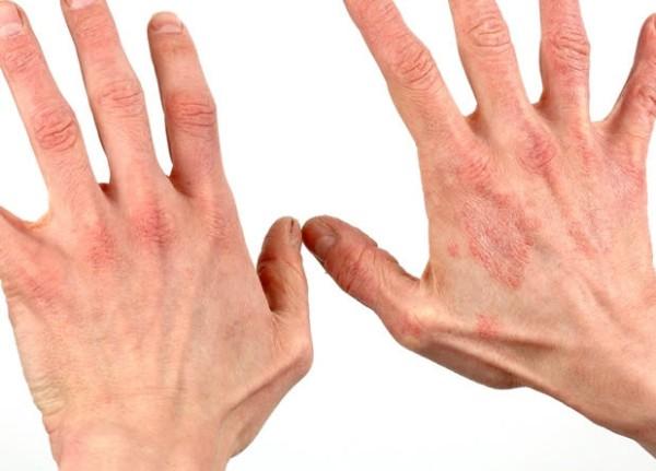 аллергия на шеллак как избавиться от зуда