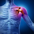 Аллергический артрит: симптомы и лечение