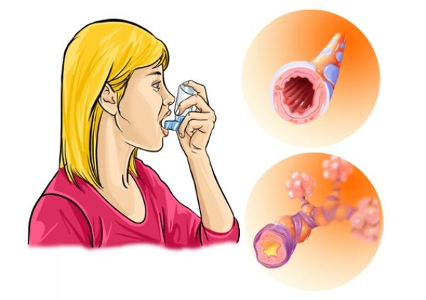 аллергический бронхит лечение симптомы