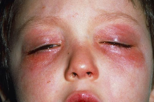 аллергия на хлорку на лице