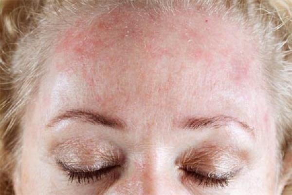 аллергия на кофе симптомы лечение