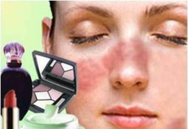 allergiya-na-kosmetiku-2