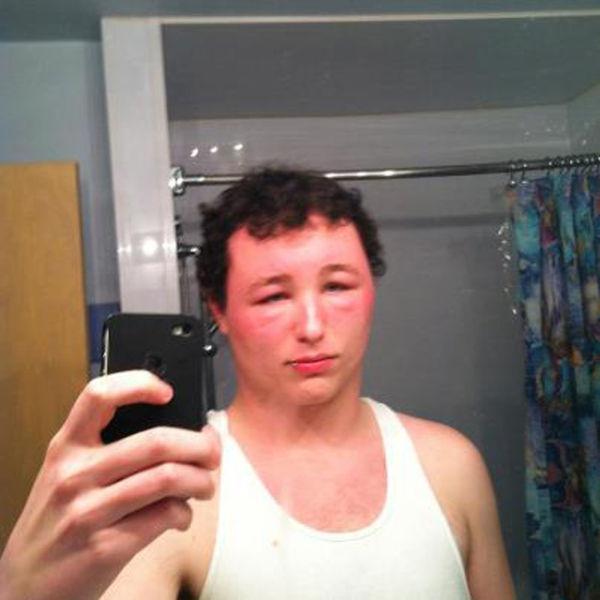Как проверить краску для волос на аллергию