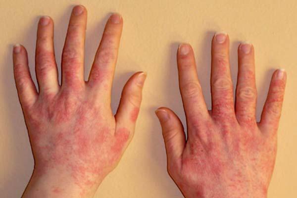 аллергия на помидоры как проявляется