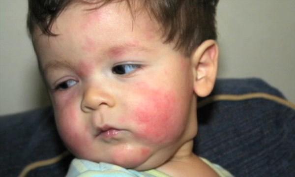Аллергия на лице у ребенка