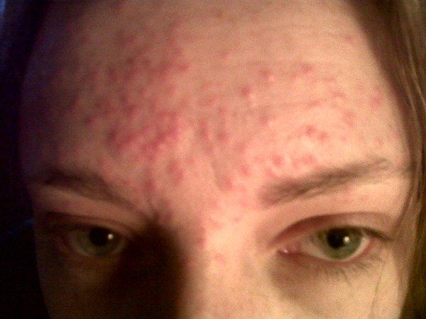 Аллергия на лице - фото