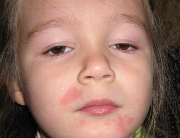 аллергия на мандарины симптомы лечение