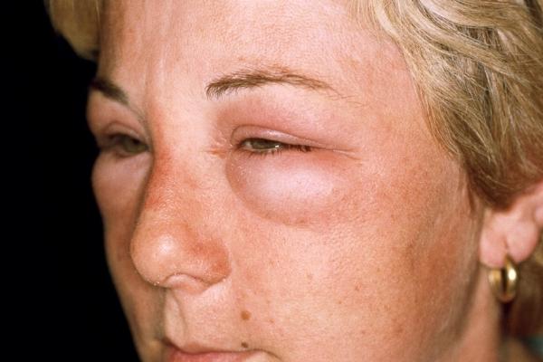 аллергия в гортани симптомы