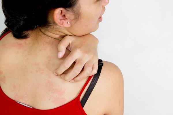 симптомы аллергии на синтетику