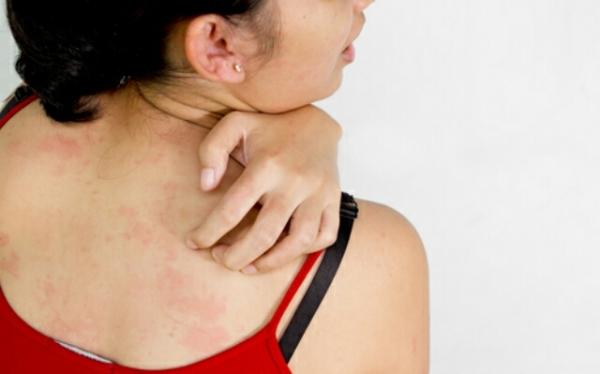 аллергия на ткань