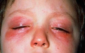 Аллергия на веках глаз
