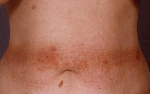 atopicheskij-dermatit-dieta-2