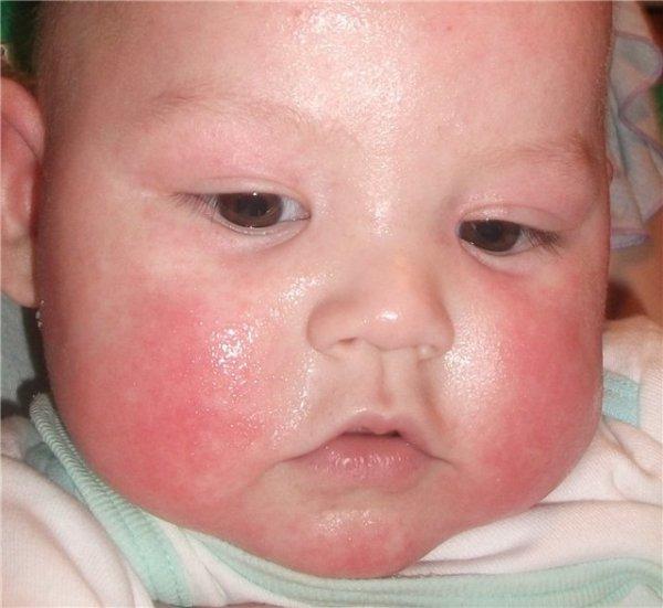 атопический дерматит у новорожденных грудных детей