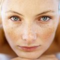 Атопический дерматит на лице