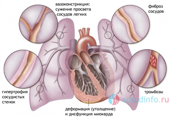 bronhialnaia-astma-4