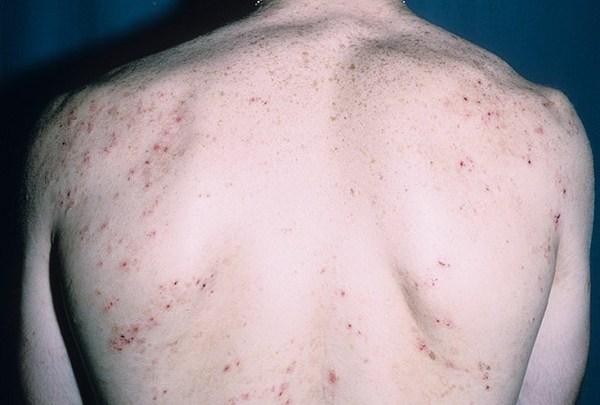герпетиформный дерматит дюринга
