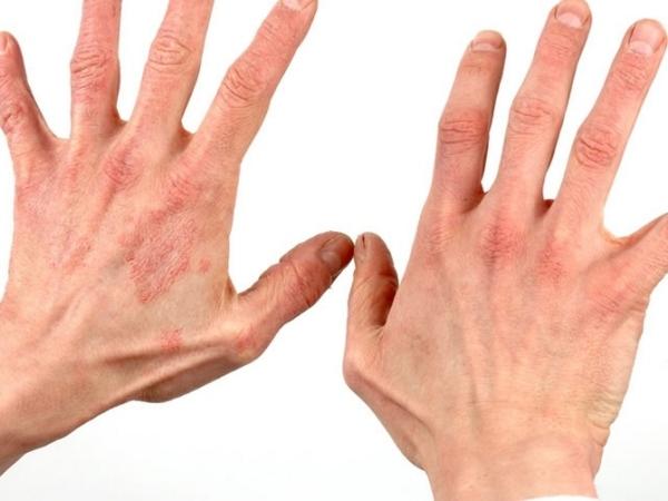 Дерматит кожи рук