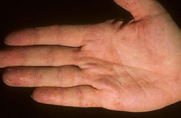 Дисгидроз кистей рук