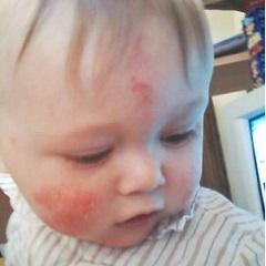 Экзема у детей: как правильно лечить