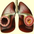 Физиотерапия при бронхиальной астме