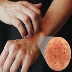 Фолликулярный дерматит: описание заболевания