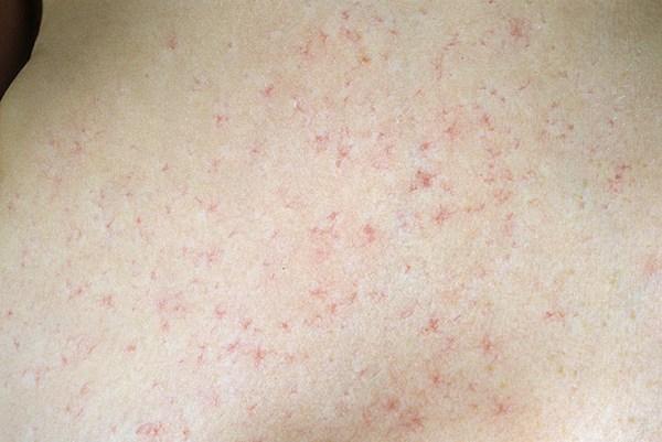 гормональные мази при дерматите