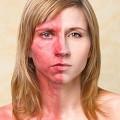Хронический дерматит: лечение и симптомы