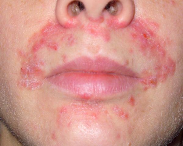 лечение хронического дерматита