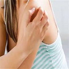 Идиопатическая крапивница: симптомы и лечение