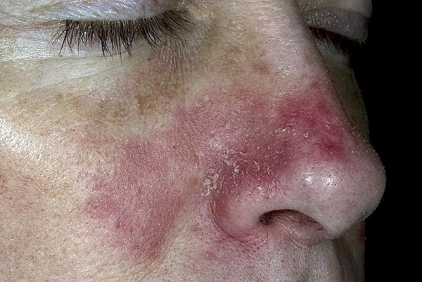 Как избавиться от себорейного дерматита?