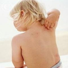 Кожный дерматит: причины, симптомы, лечение