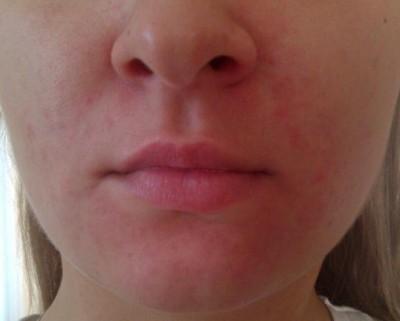 Лечение крапивницы на лице