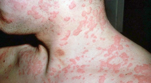 аллергия на рыбу у взрослого