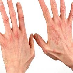 Кремы и мази от дерматита на руках: обзор