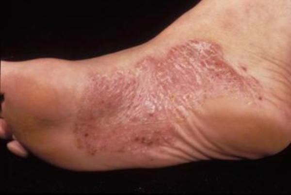ладонно-подошвенный псориаз лечение симптомы