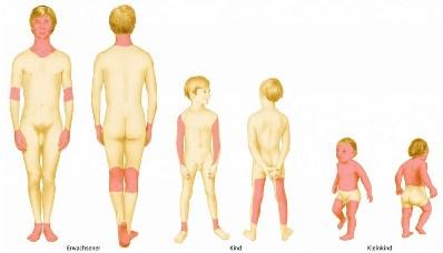 Локализация нейродермита у разных возрастных групп людей