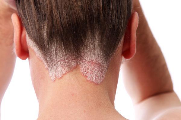 нейродермит у взрослых как лечить