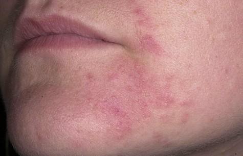 пероральный дерматит на лице