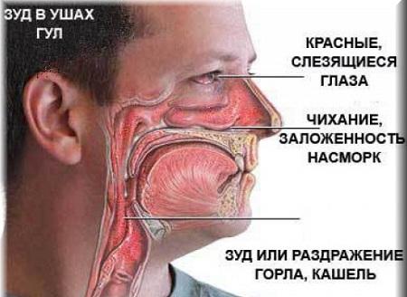 поллиноз причины симптомы