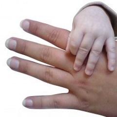Псориаз ногтей: лечение и симптомы