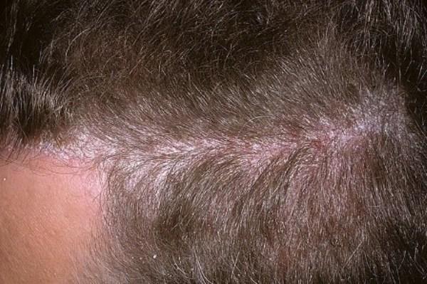 псориаз на голове лечение