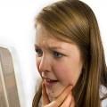 Пузырчатый дерматит: описание заболевания