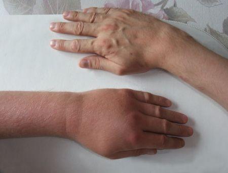 Опухшая рука после укуса осы
